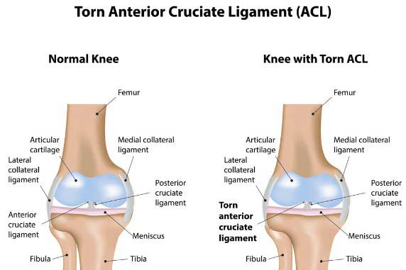 What Is a Torn ACL